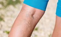 Jakie są naturalne sposoby leczenia żylaków?