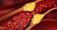 Miażdzyca - przewlekła choroba ukłau krążenia