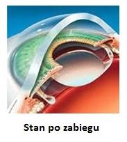 stan soczewki po zabiegu operacji zaćmy 1dayclinic szpital etermed gdańsk Trójmiasto Elbląg Puck