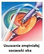 usunięcie zmętniałej soczewki (zaćmy) oka 1dayclinic szpital etermed gdańsk zaćma Sopot Gdynia