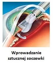 wprowadzenie sztucznej soczewki (likwidacja zaćmy) szpital 1dayclinic etermed gdańsk Gdynia Sopot Trójmiastozaćma