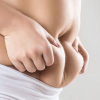 Abdominoplastyka (wycinanie nadmiaru fałdów skórnych z tkanka tłuszczową)
