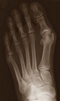 ortopedia gdansk