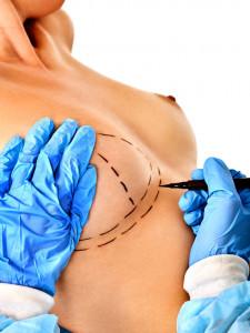 Operacja powiększenia piersi w szpitalu 1DayClinic w Gdańsku
