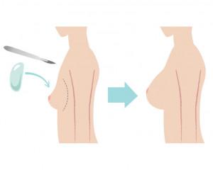 Operacyjne powiększanie piersi biustu implantami Sopot Gdynia Gdańsk Trójmiasto Pomorskie