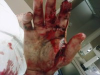 uwszkodzona ręka 3