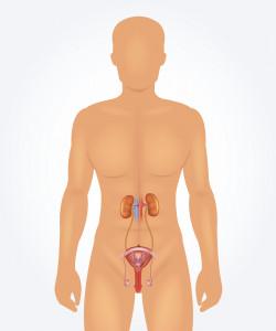 Zabieg RIRS - leczenie kamicy nerkowej i nowotworów górnych dróg moczowych