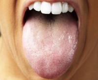 Zapalenie języka